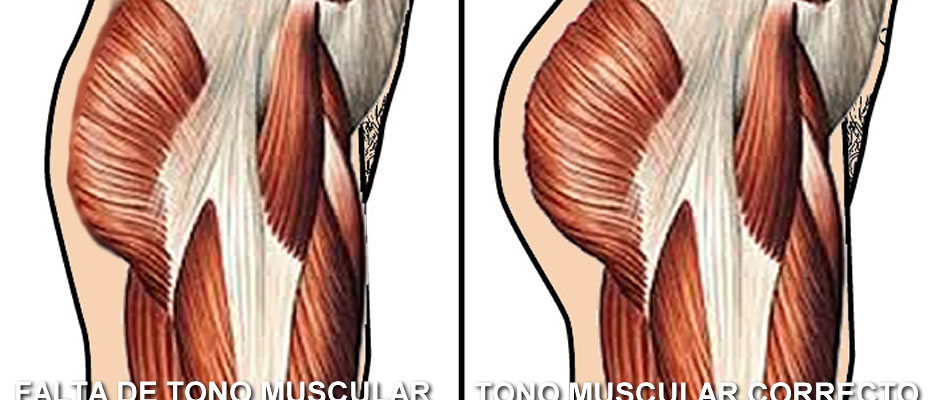 Imagen del glúteo sin tono muscular frente al que sí tiene el tono muscular correcto.