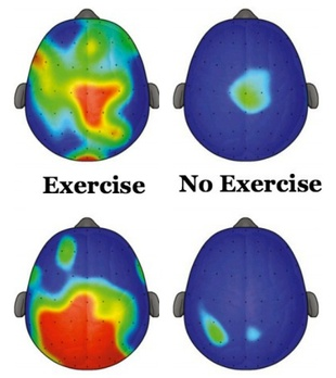 Brain: exercise vs no exercise